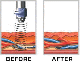 Focused Shockwave Therapy treats Erectile Dysfunction in Salt Lake City