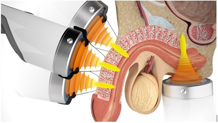 Shock Wave Therapy for ED in Salt Lake City UT
